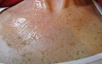 how to lose melanin in your skin
