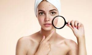 impact junk food acne risks