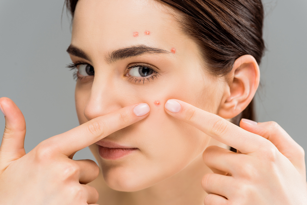 Common Acne Care Mistakes to Avoid