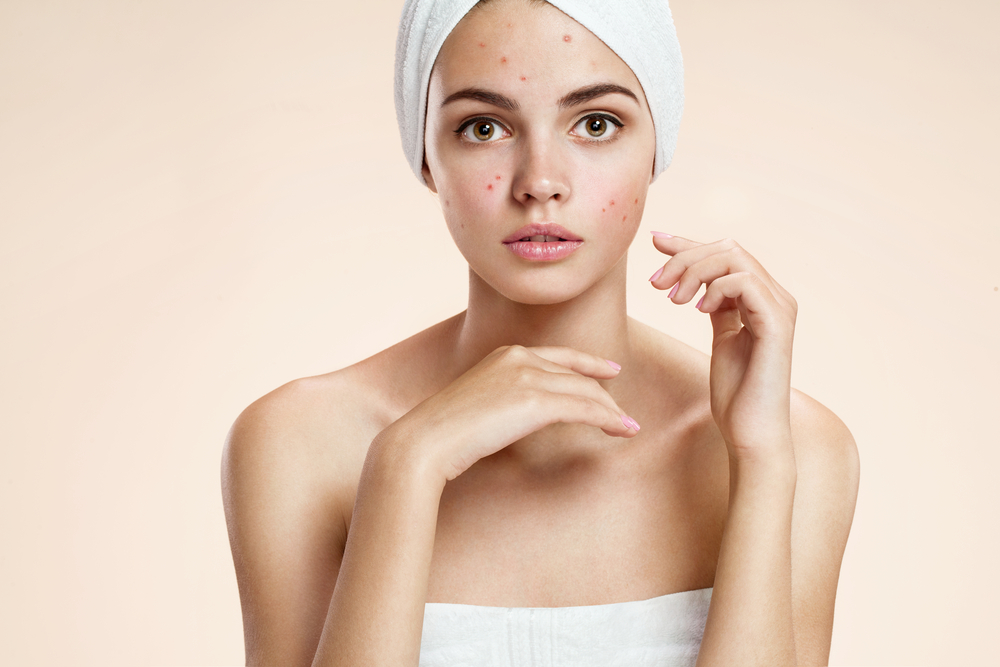 Using Probiotics to Improve Acne