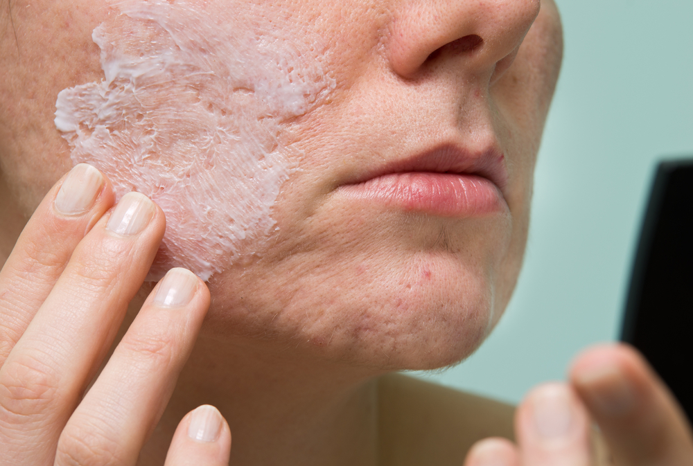 Pros & Cons of DIY Acne Treatment
