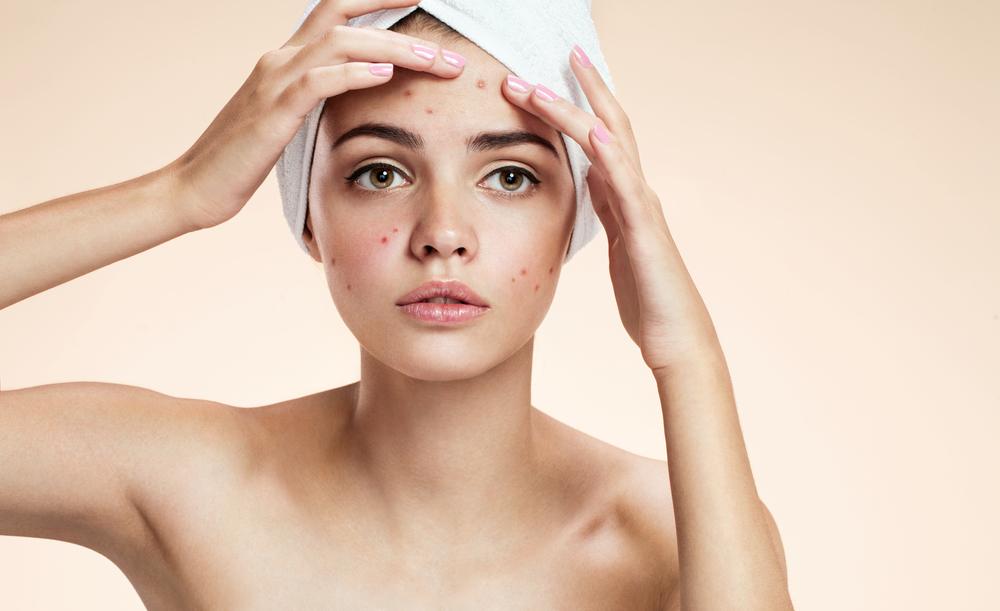 treatments female hormonal acne