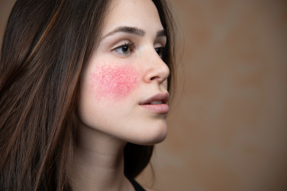 Acne rosacea can cause painful swelling and bumps. Learn how to treat this condition.