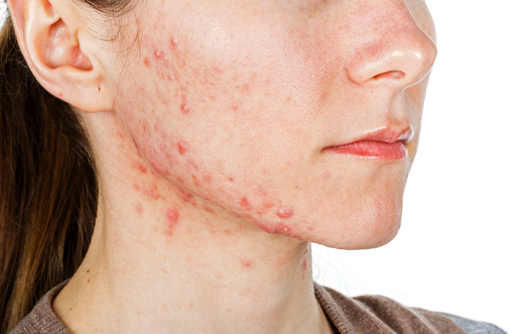 Hormonal acne can be painful; a skincare professional can help you find the right treatment.