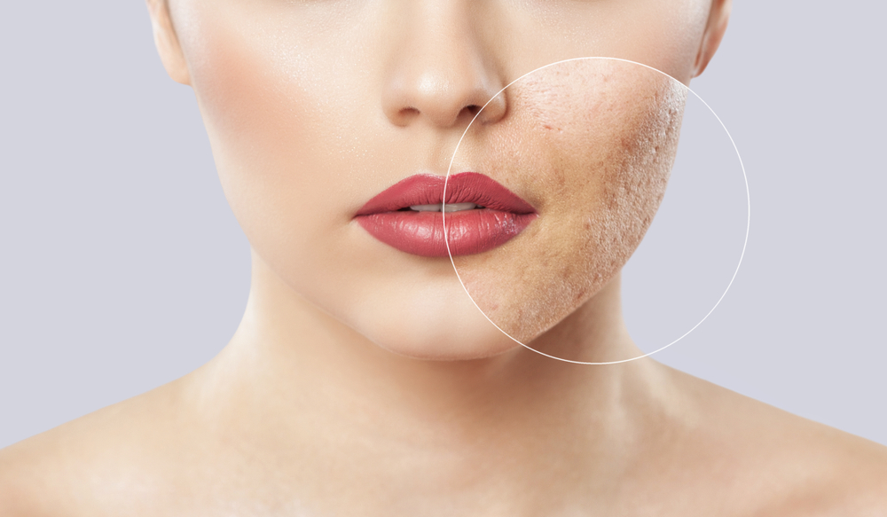 Severe acne can lead to scarring, but there are at-home and professional treatments to help heal these scars.