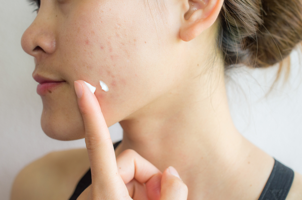 Acne spot treatments can help clear up blemishes faster, but it's important to use the right products.