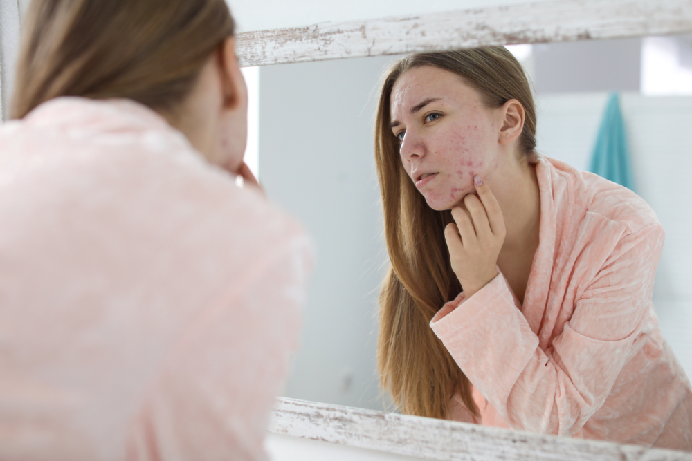 Fighting acne isn't easy, but it can be harder if you are trying to do it alone.